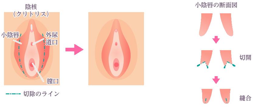 陰唇 もの 小 でき